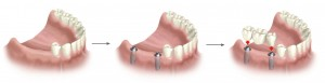 Implantologia a Centre dental Sant Andreu