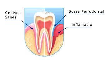 Exemple gingivitis